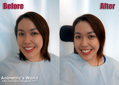 Before and after Shiseido White Lucent